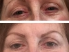 permanent-makeup-3-before-healed